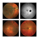 True Color Ultra-widefield fundus imaging
