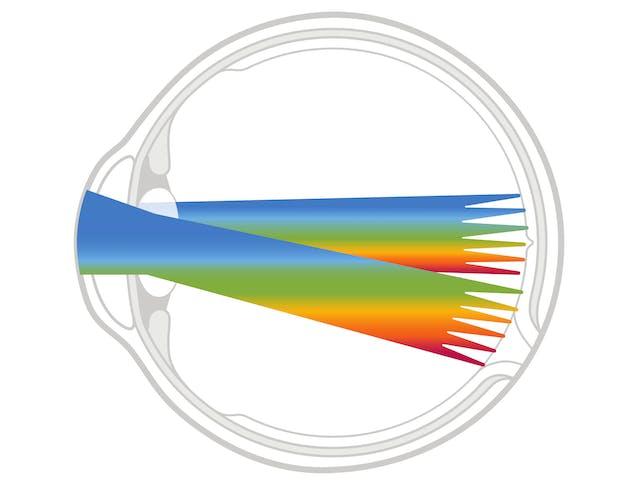 Die volle Palette an Bildgebungsmodalitäten für die Netzhaut
