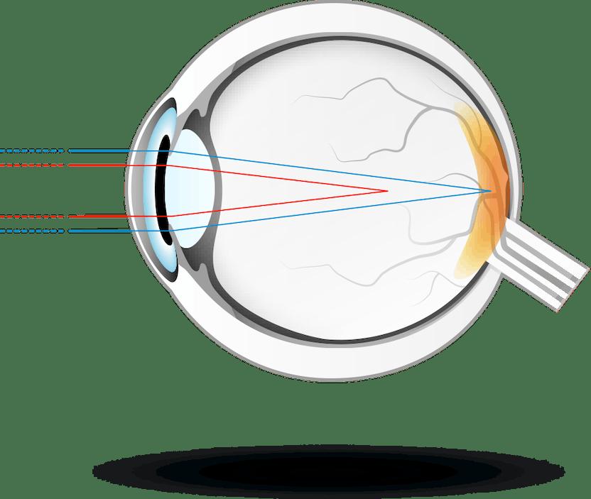 afrodiziac și viziune întunecă vederea