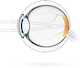 Astigmatism – condition in which the cornea's curvature is asymmetrical, so light rays are focused at two points rather than one, resulting in blurred vision