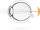 Farsightedness – condition in which visual images come to a focus behind the retina making it more difficult for the eyes to focus on near objects