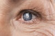 Cataract: What does surgery involve?