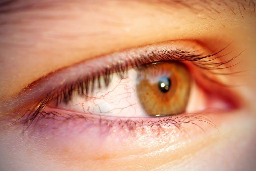 svidande ögon stress