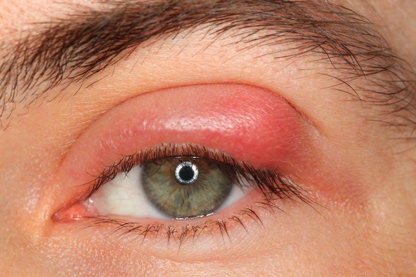 inflammation i ögonlocket