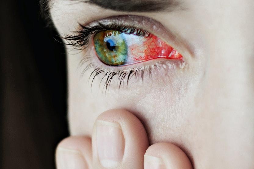 Red Burning Eyes Sensitive To Light Decoratingspecial Com