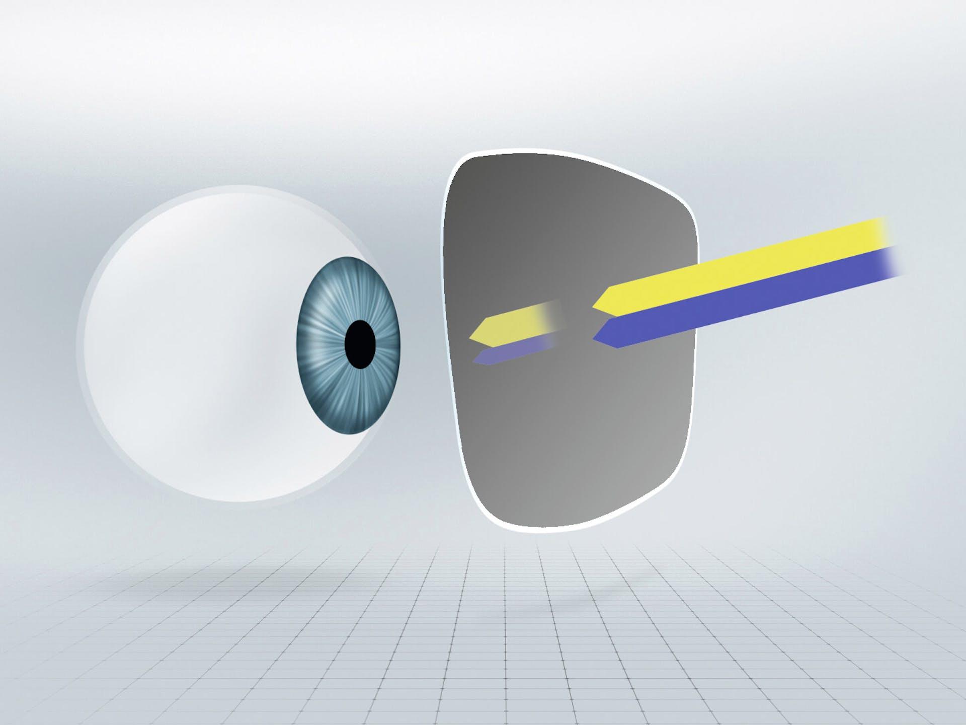 Линзы с затемнением или самозатемняющиеся линзы частично поглощают сине-фиолетовый свет