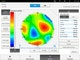 i.Profiler plus features a high- resolution wavefront measurement and corneal topography