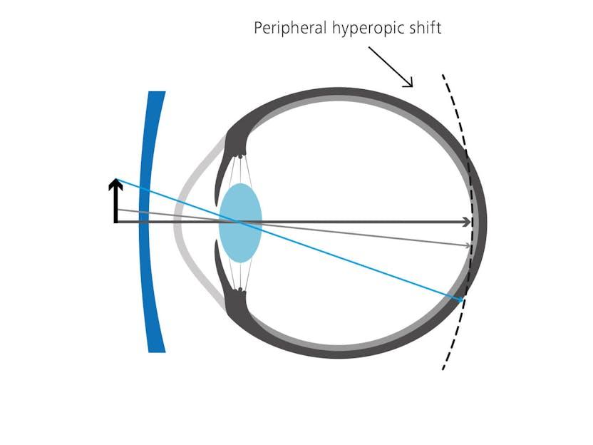 myopia myo